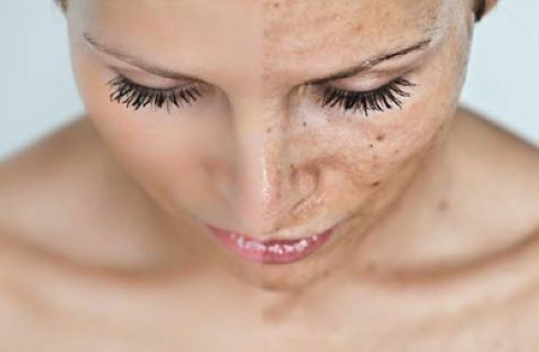 Come rovinare la pelle