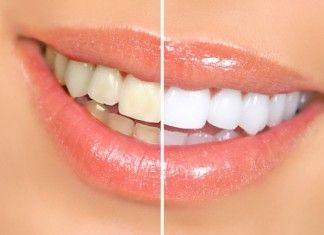 Denti bianchi: come sbiancarli