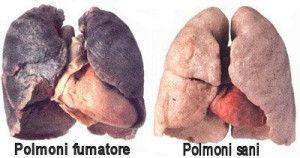 fattori di rischio dei tumori : danni da fumo