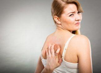 Come sbarazzarsi dell'acne sulla schiena