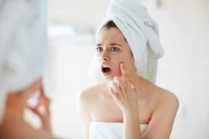 Come sbarazzarsi dalle cicatrici da acne