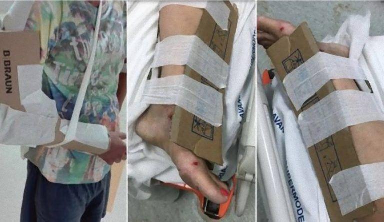 Scempio italiano, mancano i gessi e i tutori in ospedale: pazienti medicati coi cartoni