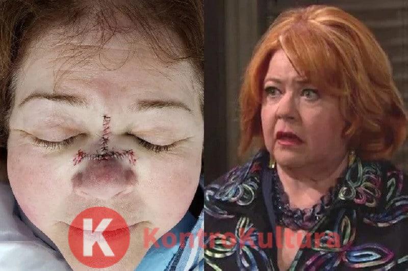 Beautiful, un'attrice allarma i fan della soap: 'Ho il cancro alla pelle'