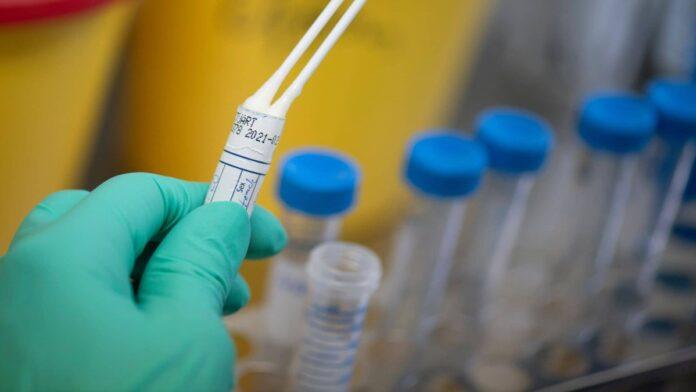 Coronavirus, fiale di laboratorio