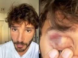 Stefano De Martino con l'occhio nero