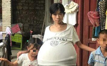 Donna con stomaco a palloncino