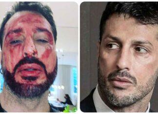Fabrizio Corona tagliato i polsi